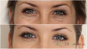 چه شرایطی پوست زیر چشم را تیره خواهد کرد؟