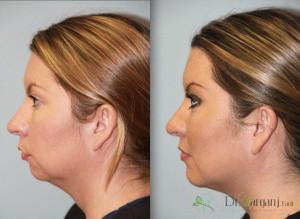 زاویه سازی صورت با تزریق ژل و چربی