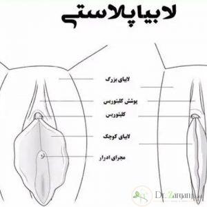عمل لابیا در اصفهان