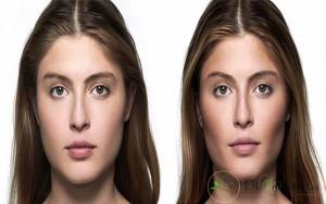 زاویه سازی صورت چیست