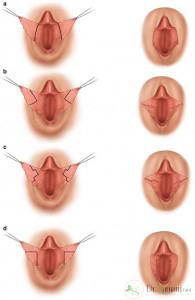 مزایای انجام عمل لابیاپلاستی چیست؟