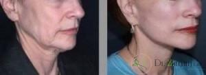 نکاتی که باید قبل و بعد از انجام تزریق بوتاکس رعایت شود؟