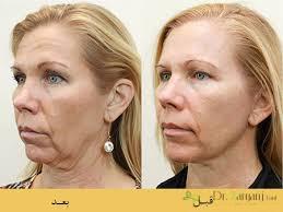 جراحی بر روی پوست و ماهیچه های ریز
