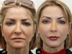 آرایش بعد از تزریق ژل