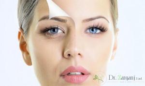 مراقبت بعد از کربوکسی تراپی چشم