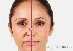 فواید تزریق ژل زیر چشم چیست؟
