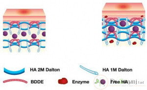 کاربردهای تزریق ژل چیست؟