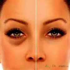 مراقبتهای بعد از تزریق ژل زیر چشم