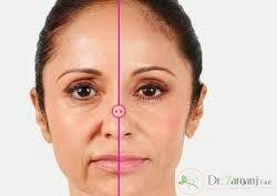 عوارض تزریق ژل زیر چشم