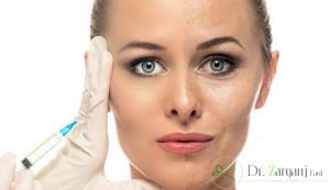چه افرادی باید تزریق ژل صورت را انجام دهند؟