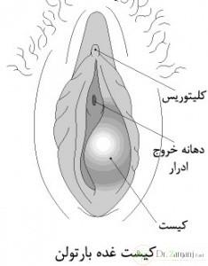 علائم کیست واژن