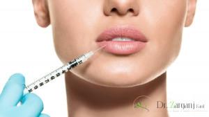 2) بهترین دکتر برای تزریق لب چه ویژگی هایی دارد؟