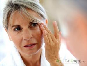 لیفت صورت یا لیفت پوست چیست؟