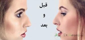 بهترین دکتر تزریق ژل بینی در تهران