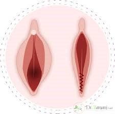 التهاب و عفونت بعد از انجام عمل پرینورافی: