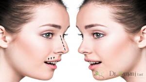هزینه لیفت بینی بدون جراحی