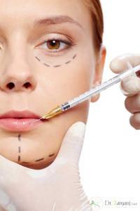 روش تزریق ژل هایومکس بر روی لب ها