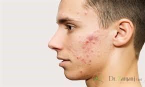 بهترین دکتر پوست تهران برای درمان جای جوش