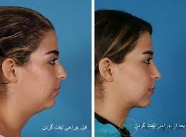 1.لیفت گردن چیست؟