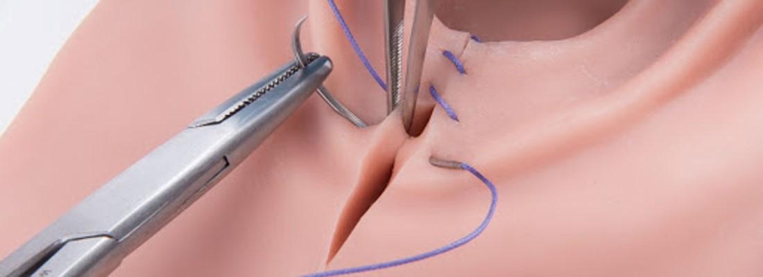 بخیه جذبی واژن بعد از کدام عمل ها انجام می گیرد؟
