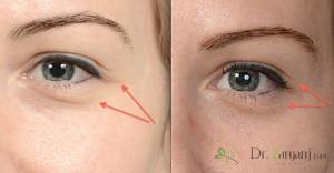 1ـ ژل زیر چشم پرفکتا برای کاهش نواقص اطراف چشم چگونه عمل می کند؟