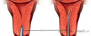 واژینیسموس معمولا در چه افرادی ایجاد می شود؟