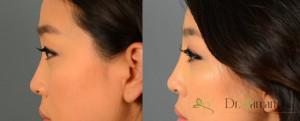 تزریق ژل برای گودی بینی