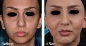 تزریق ژل کدام نواحی از صورت را درمان می کند ؟