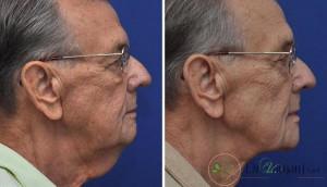 لیفت گردن چیست؟