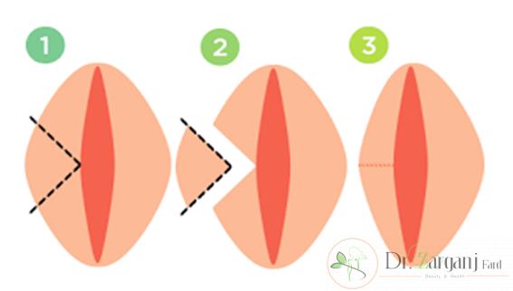 لابیاپلاستی با لیزر چگونه است؟