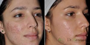 درمان جای جوش روی صورت چگونه امکان پذیر است؟