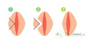 یک نکته بسیار مهم، مربوط به عمل جراحی زیبایی واژن چیست؟