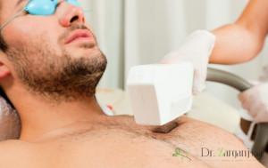 قیمت لیزر موهای بدن مردان