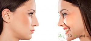 عوارض فرم دهی بینی با ژل