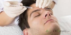 6.آیا زاویه دار کردن صورت بدون جراحی امکان پذیر است ؟