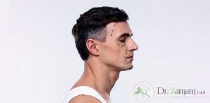 زوایه سازی صورت مردان