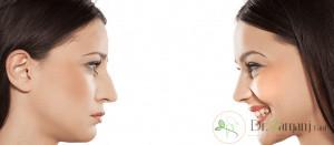 لیفت بینی استخوانی