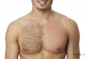 علل تمایل آقایان در انجام دادن لیزر برای از بین بردن مو های زائد در مقایسه با سایر روش ها چگونه می باشد ؟