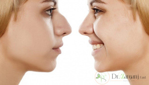 مراقبت های بعد از لیفت بینی با نخ