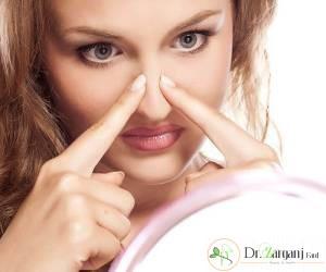آیا لیفت بینی با نخ مناسب برای همه افراد می باشد و چه افرادی بیشتر از این روش استقبال می کنند؟