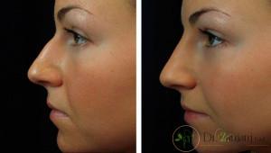 جراحی بینی با تزریق ژل چه تفاوتی دارد؟