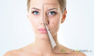 جایگزین مناسب برای روش جراحی پلک، کدام روش است؟