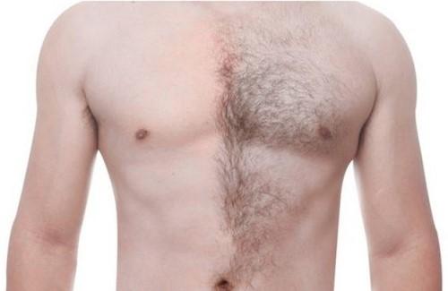 موی بدن به دو بخش زائد و غیر زائد تقسیم می شود