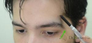 هزینه ی از بین بردن مو های زائد پیشانی به وسیله ی لیزر چقدر می باشد ؟