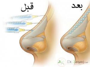 پس از تزریق ژل انجام چه مواردی ضروری است؟