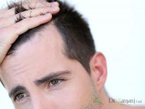 چگونه می توان از لیزر برای از بین بردن مو های زائد پیشانی مردان استفاده کرد ؟