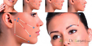 لیفت صورت با نخ به چه صورت می باشد ؟ و انواع نخ های مورد استفاده در این روش کدام نخ ها می باشند ؟