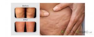 تزریق باید در عمق پوست های ترک خورده انجام شود