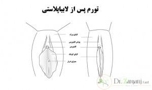دستگاه تناسلی زنان دارای دو نوع لابیا است :