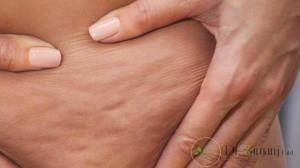 تاثیر کربوکسی تراپی برای لاغری به چه صورت است؟
